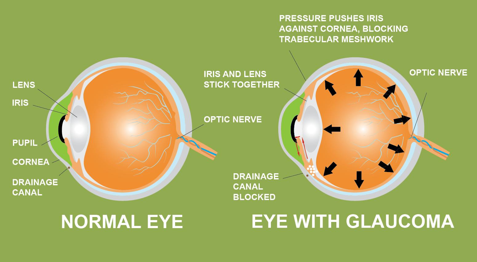 glaucoma iride cannabis canale allievo lente drenaggio cornea prevenzione