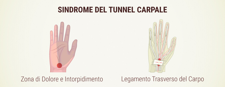 Sindrome del Tunnel di Carpien