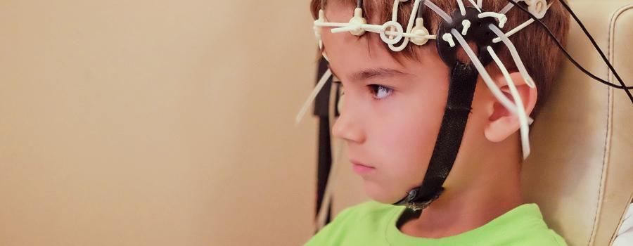 Bambini sindrome di Dravet di epilessia