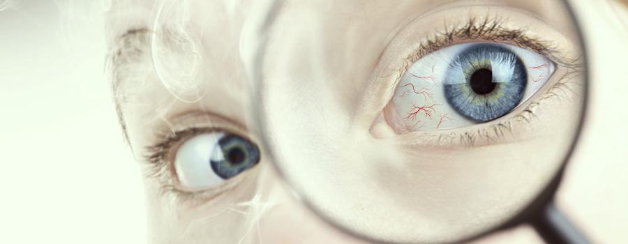 Occhi rossi ipertensione cannabis