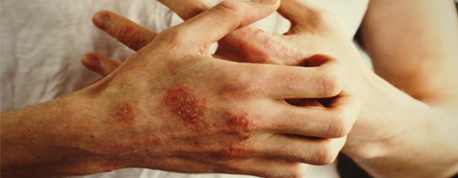 Eczema e allergie