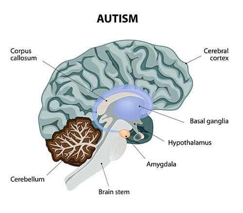 cannabis e autismo