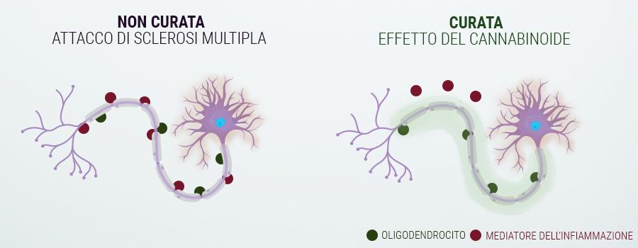 Le persone affette da Sclerosi Multipla / Spasmi Muscolari..