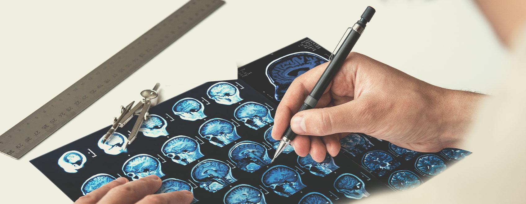 Tipi di sclerosi multipla